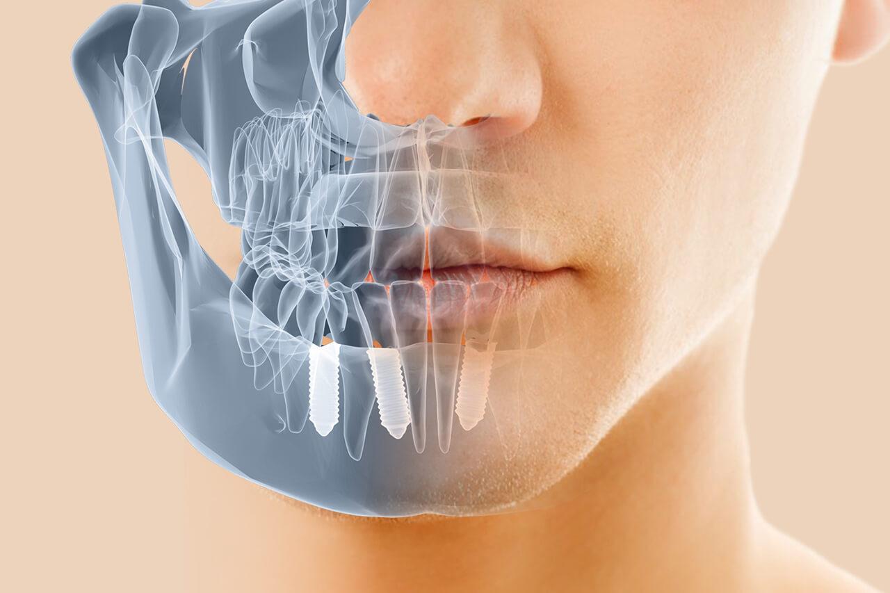 Implantes Dentales Gandia